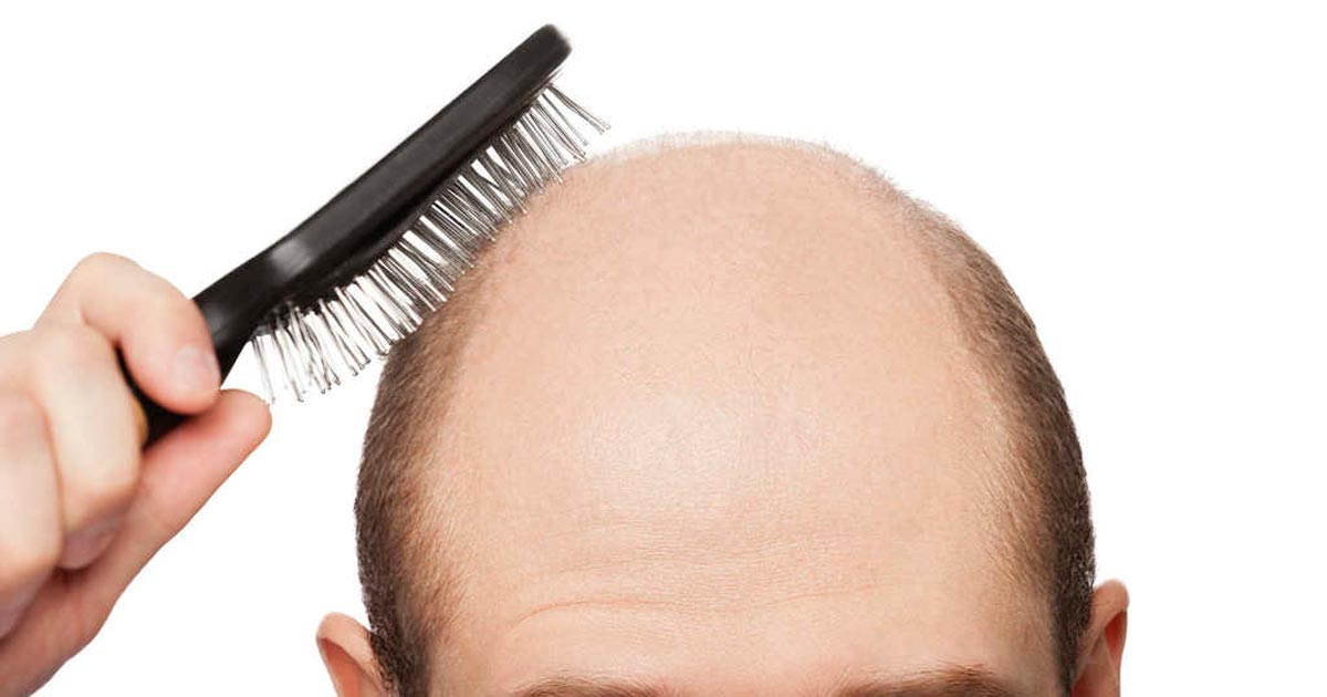 Study: being bald makes you look more masculine, intelligent and successful