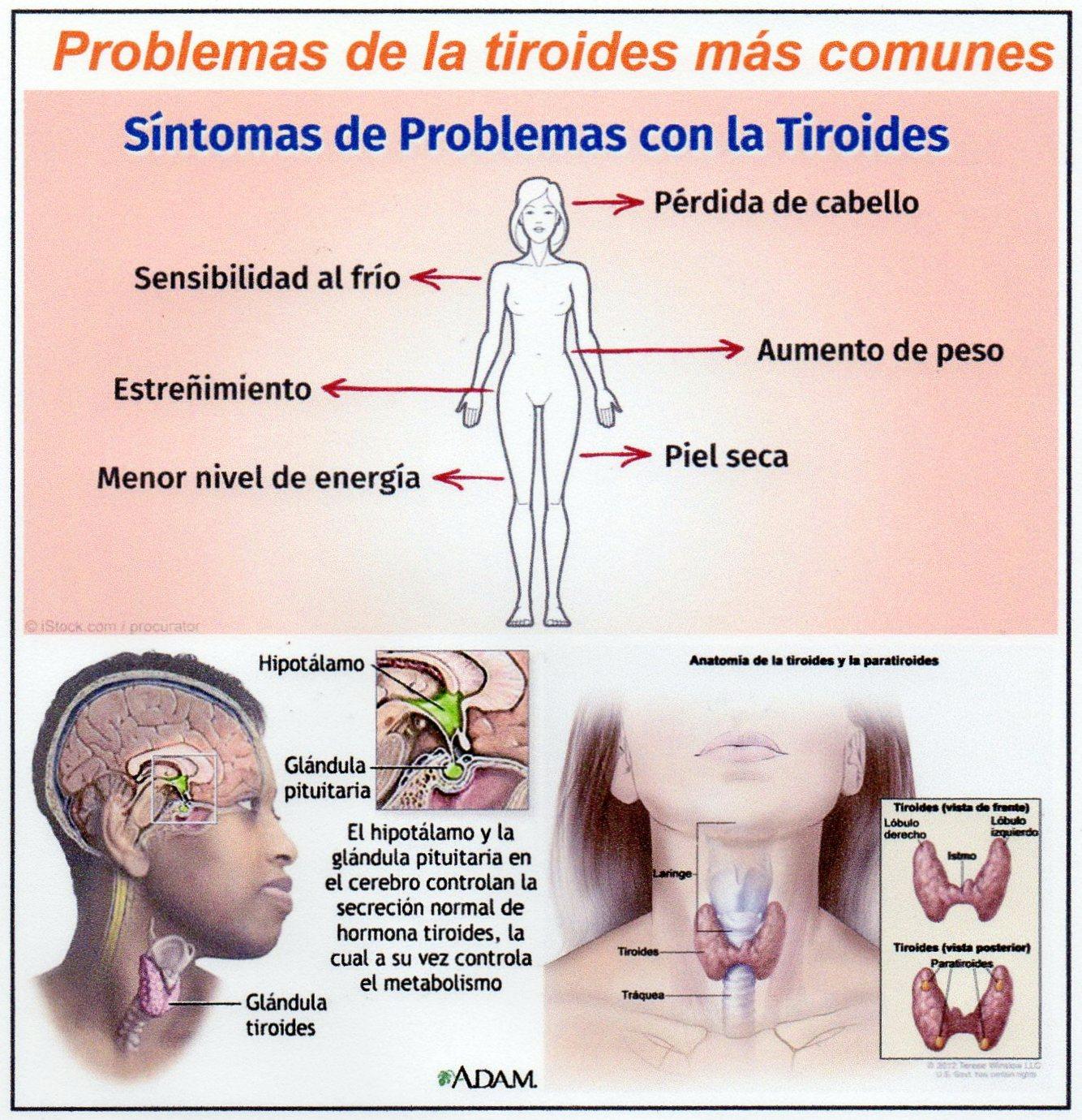 Diez datos claves sobre los problemas de tiroides