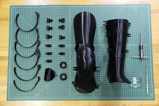 3D-printed BoomCast heals broken bones the connected way