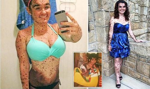 "Bullied Teen With Rare Skin Condition: ""I'm So Proud to Be Different"""