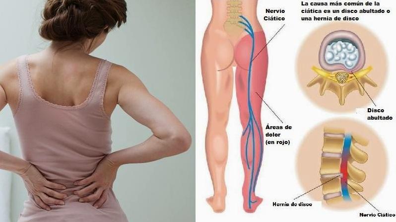 Tratamientos para aliviar dolores del nervio ciático