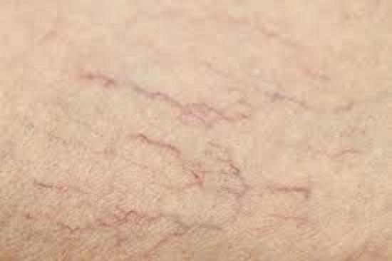 deshacerse de las arañas vasculares remedios naturales