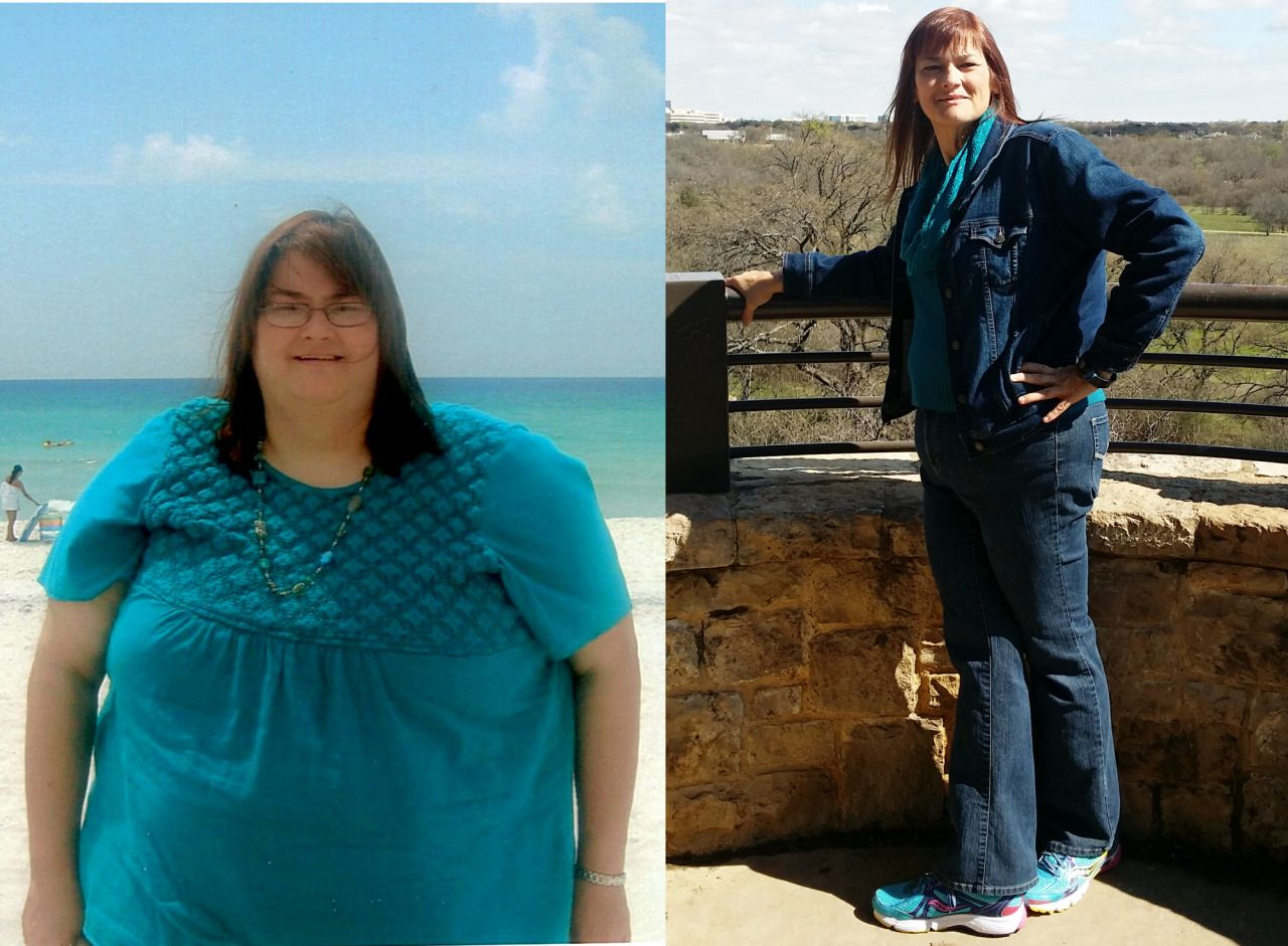 Woman's inspiring story of 243-pound weight loss