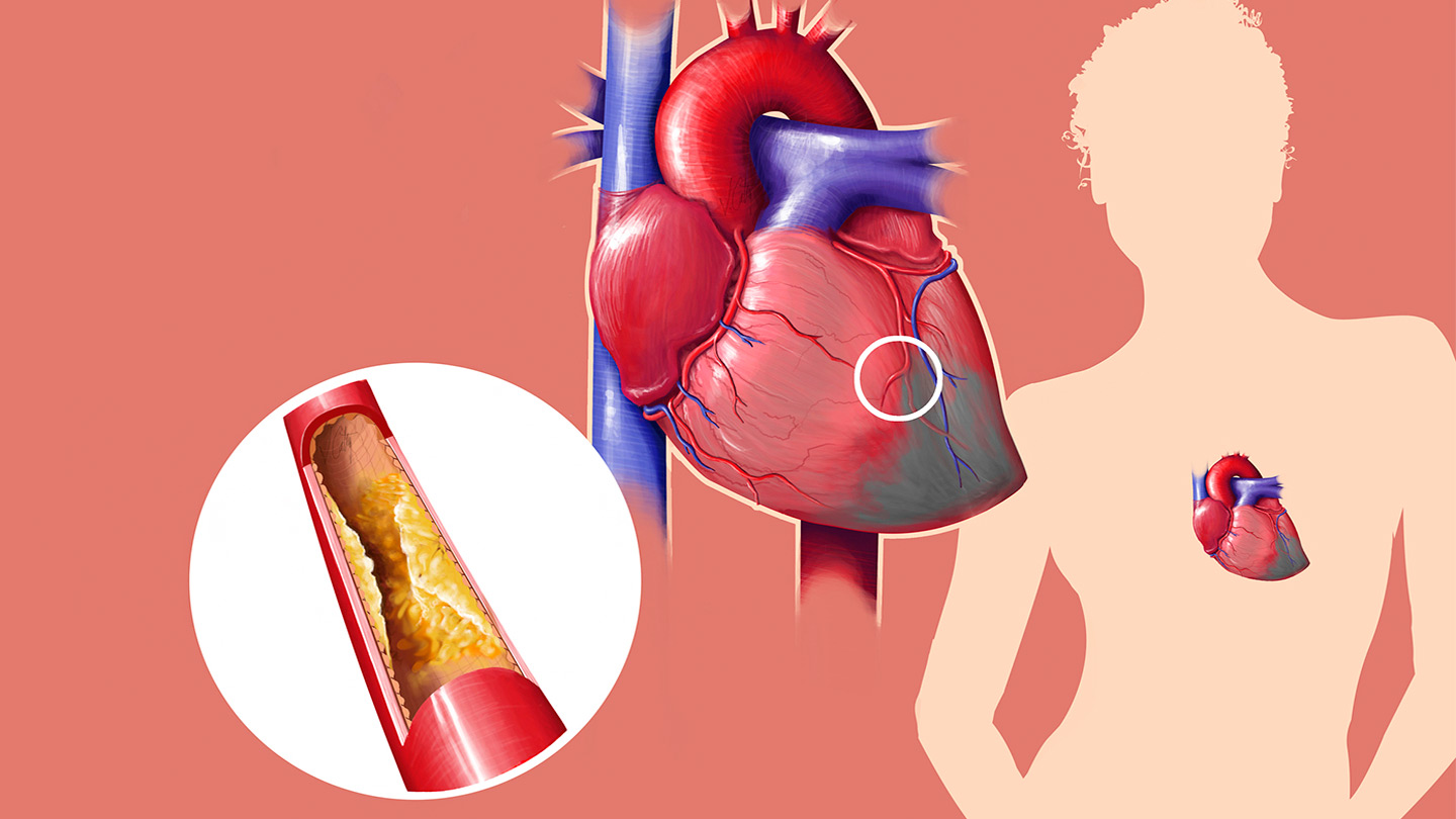 Facts about high cholesterol