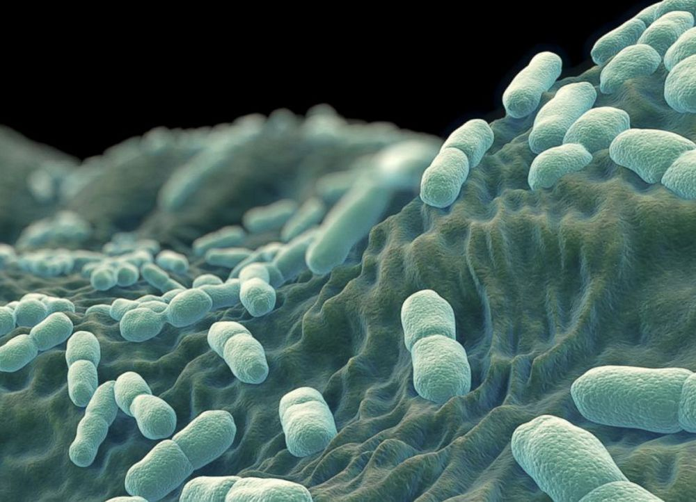 Is Listeriosis contagious?
