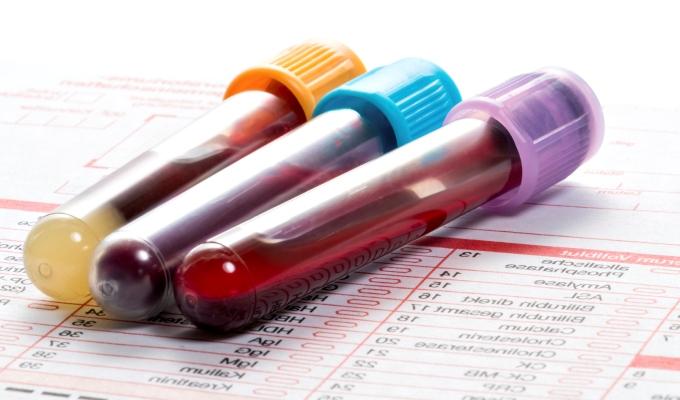 En sangre reducir ferritina como