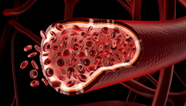 Cómo limpiar los vasos sanguíneos de colesterol?