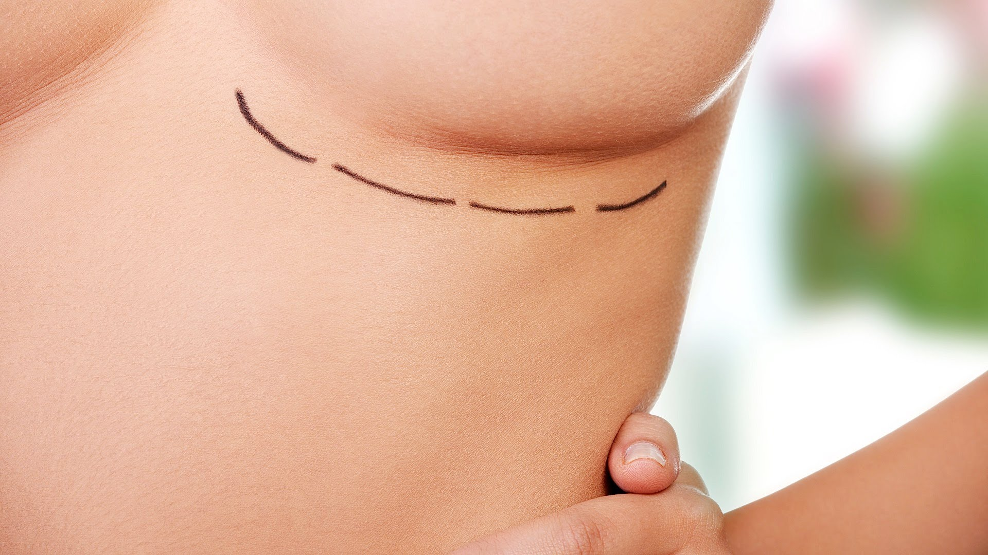 Dissatisfaction with breasts may mean fewer self-checks for cancer