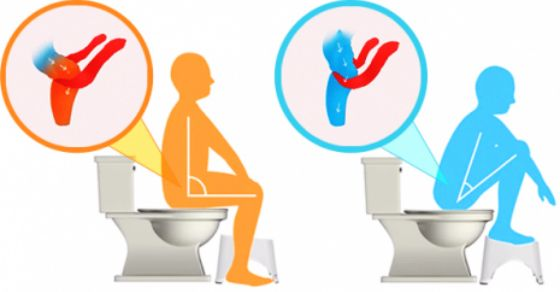 The right form to do poop: Squatty Potty position