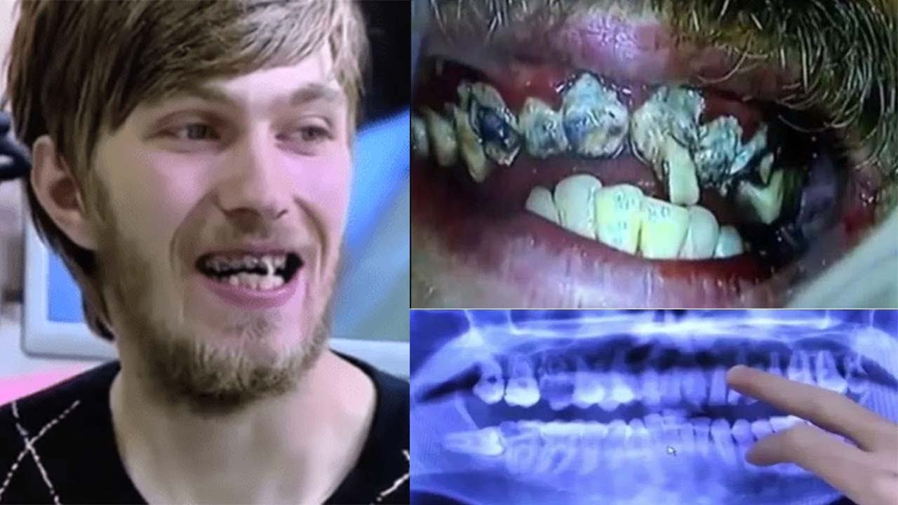 This man has not brushed his teeth for over 20 years