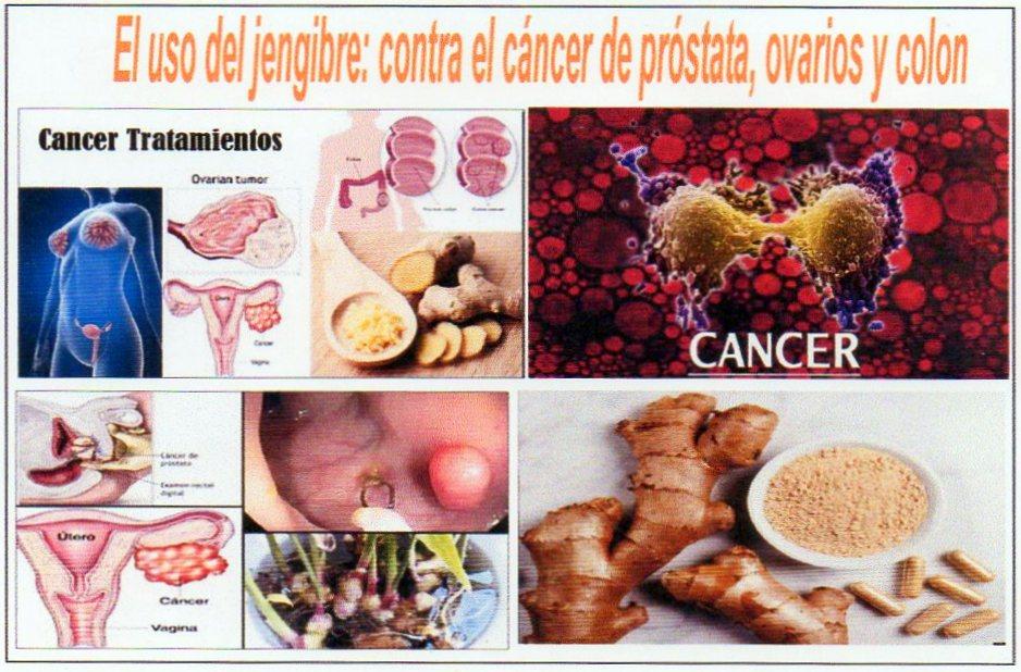 jengibre beneficios para el cancer
