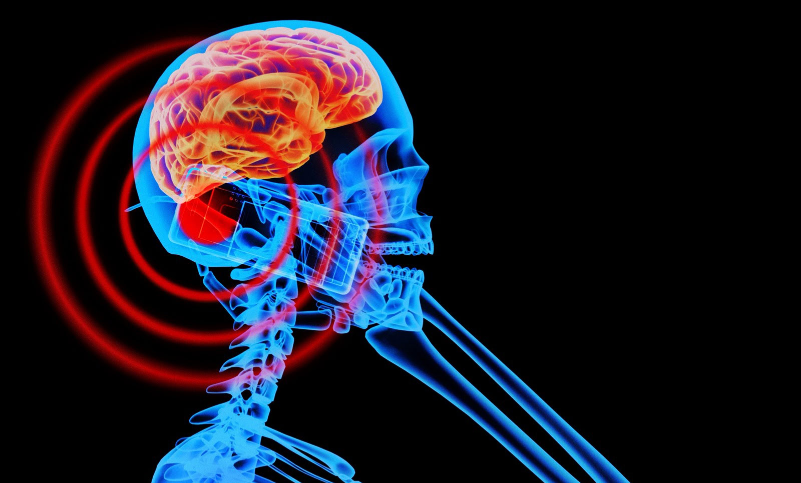 How cellphones can cause brain tumors and trigger chronic disease