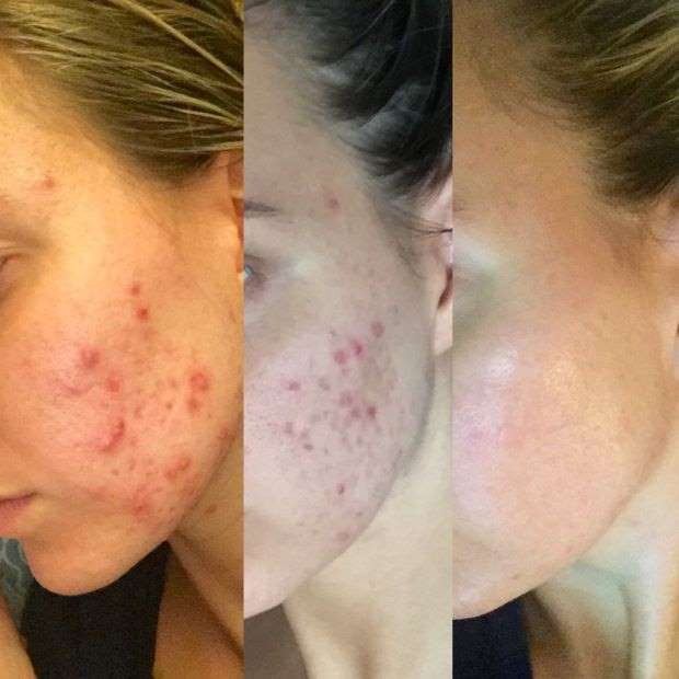 'My acne basically disappeared after I cut out gluten, sugar, and dairy'