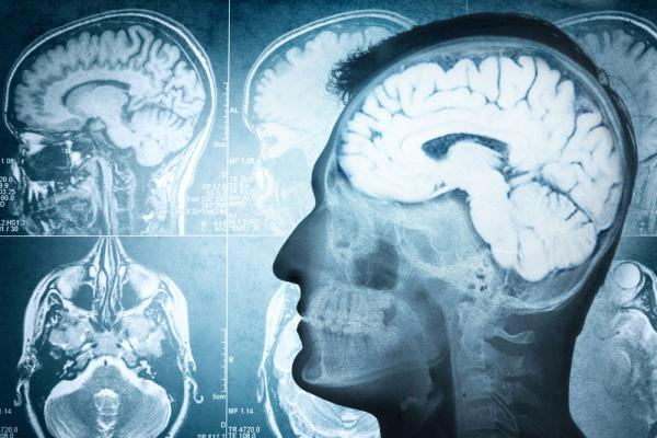 Hyperactive brain networks can multiply fibromyalgia pain: Study